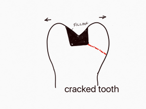 daiagram of a cracked tooth