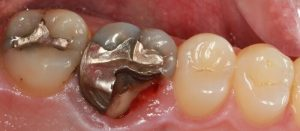 image of a cracked tooth